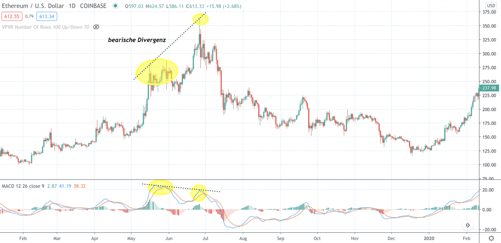 Was ist die Moving Average Convergence Divergence (MACD)